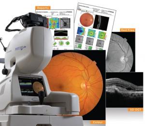 3次元眼底像撮影装置(OCT光干渉断層計)